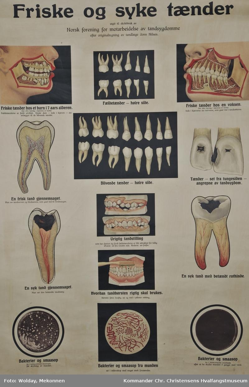 Friske og syke tænder