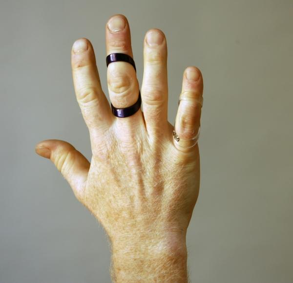 reumatism fingrar bilder